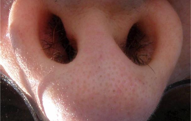 Inde: un étudiant pianote avec son nez