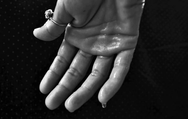 L'excès de sudation: un handicap au quotidien