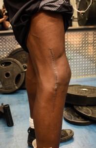 Zacary a dû attendre une semaine que son genou désenfle avant de pouvoir se faire opérer. (Photo: Félix Lacerte-Gauthier)